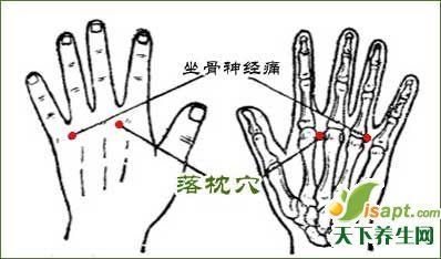 中医治疗落枕3法