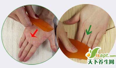 手脚冰凉用刮痧 恢复气血通畅